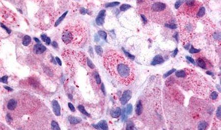 HRH2 Antibody (PA5-33845) in Immunohistochemistry (Paraffin)