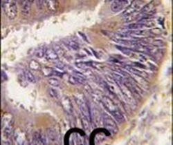 HIP Antibody (PA5-13227)