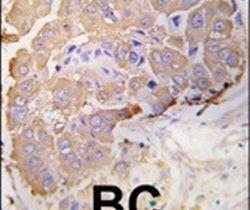 HSP27 Antibody (PA5-14022) in Immunohistochemistry