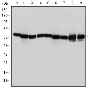 HSP60 Antibody (MA5-15836) in Western Blot