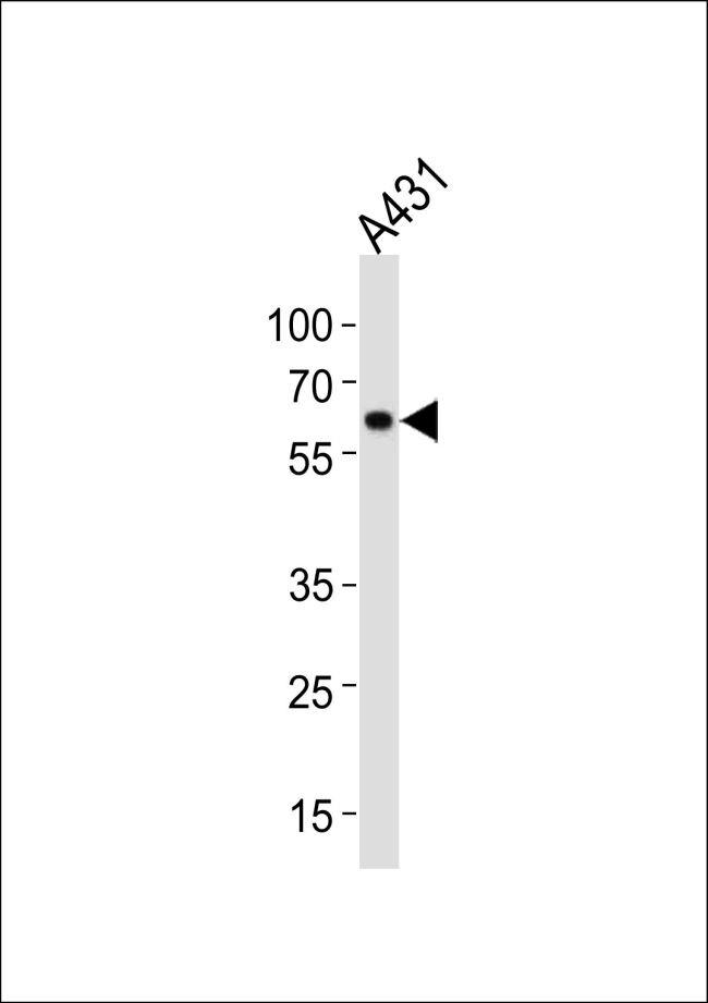 HSP60 Antibody (PA5-12484) in Western Blot