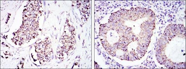 HSP60 Antibody (MA5-15836) in Immunohistochemistry