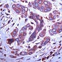 GRP94 Antibody (PA1-37807) in Immunohistochemistry