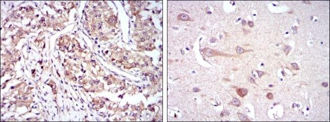 HSP90 beta Antibody (MA5-15863) in Immunohistochemistry