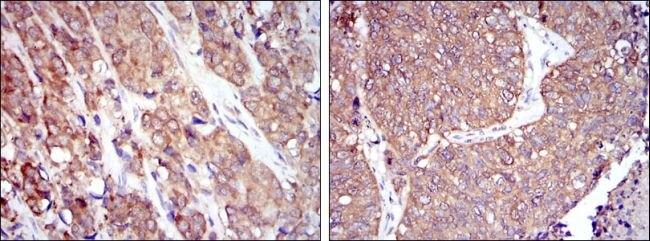 HSP90 beta Antibody (MA5-15864) in Immunohistochemistry