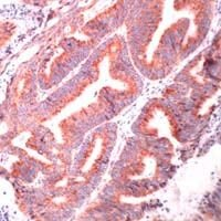 HSPA9 Antibody (PA1-37803) in Immunohistochemistry