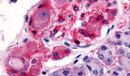 HTR2C Antibody (PA5-33307) in Immunohistochemistry (Paraffin)
