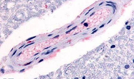HTR4 Antibody (PA5-33311) in Immunohistochemistry (Paraffin)