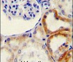 HYAL2 Antibody (PA5-24223) in Immunohistochemistry