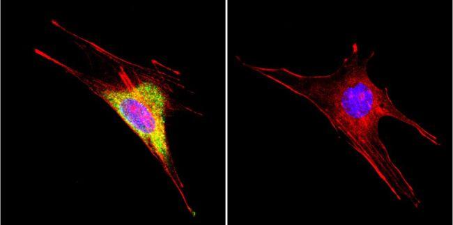 HSP60 Monoclonal Antibody (4B9/89)
