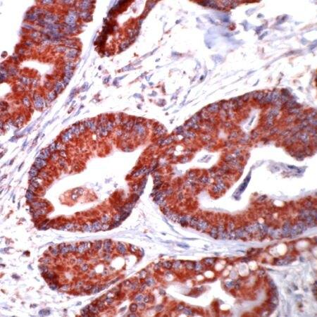HSP60 Antibody (PA5-32445) in Immunohistochemistry