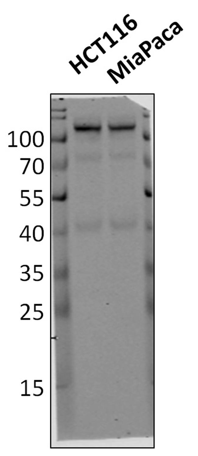 HK2 Antibody (700422) in Western Blot