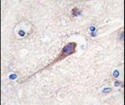 Hippocalcin Antibody (PA5-11653) in Immunohistochemistry