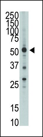 HTRA1 Antibody (PA5-11412) in Western Blot