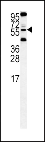HTRA1 Antibody (PA5-11413) in Western Blot