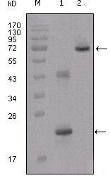 IGFBP2 Antibody (MA5-15400) in Western Blot