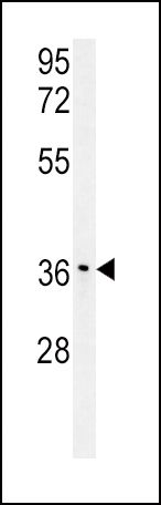 IGFBP3 Antibody (PA5-14662)