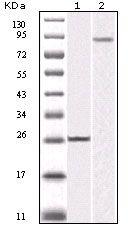 IKK beta Antibody (MA5-15319) in Western Blot