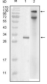 IKK epsilon Antibody (MA5-15377)