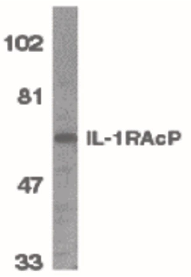 IL-1RAcP Antibody (PA5-19920)