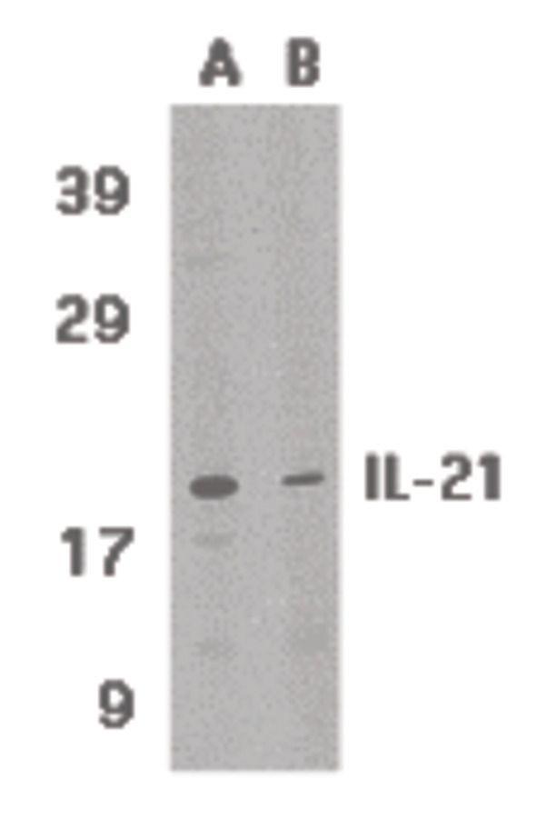 IL-21 Antibody (PA5-19981) in Western Blot