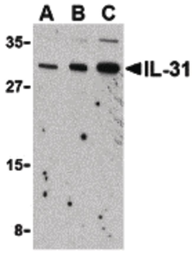 IL-31 Antibody (PA5-20219) in Western Blot