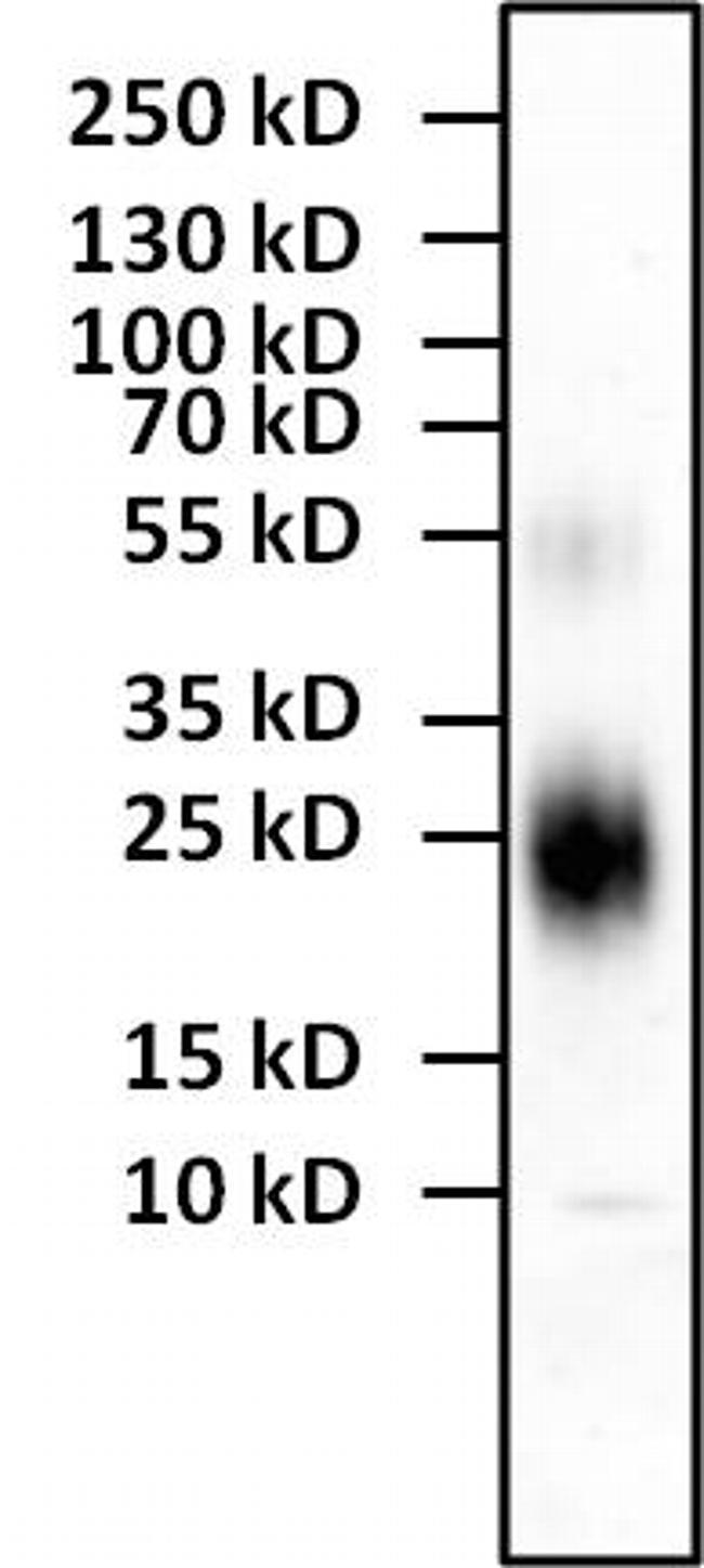 IL-4 Antibody (M2IL4BI) in Western Blot