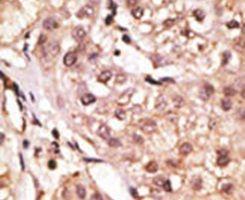 IL-29 Antibody (PA5-11710) in Immunohistochemistry