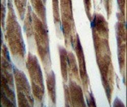 ILKAP Antibody (PA5-25778)