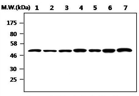 ILK Antibody (MA5-17228) in Western Blot