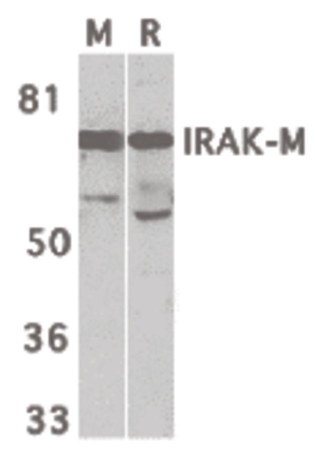 IRAK3 Antibody (PA5-19969) in Western Blot