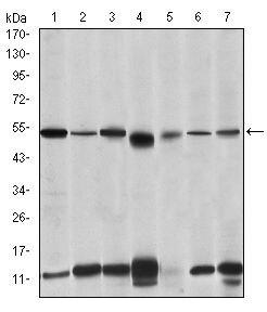IRAK4 Antibody (MA5-15883) in Western Blot