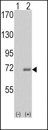 IRAK1 Antibody (PA5-14913) in Western Blot