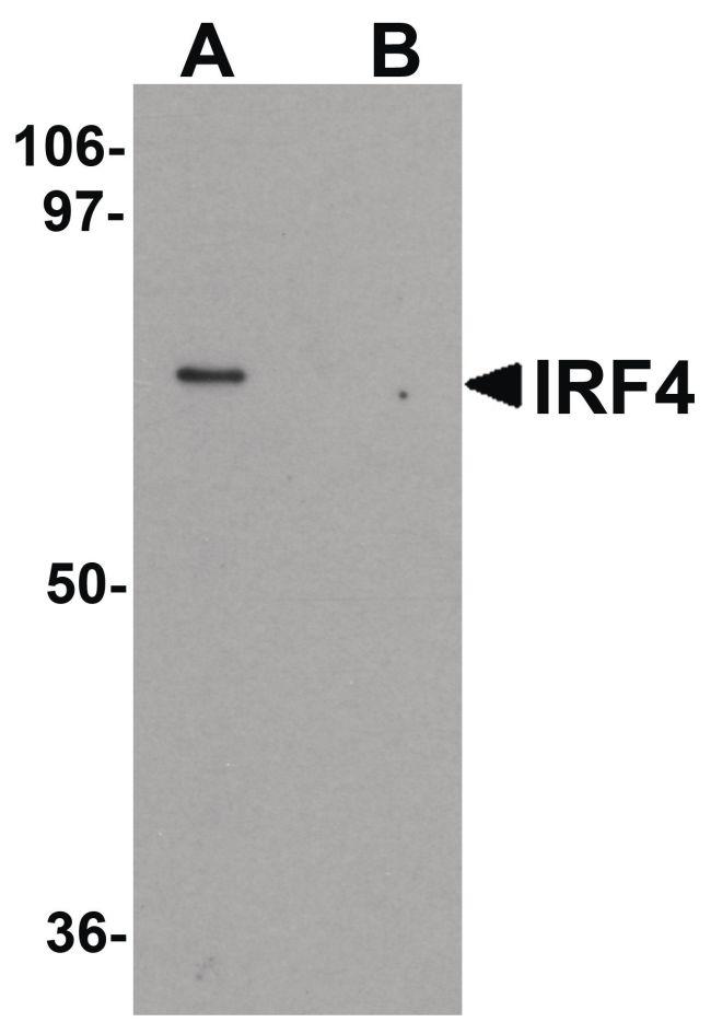 IRF4 Antibody (PA5-21144) in Western Blot