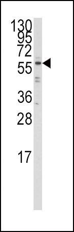 IRF5 Antibody (PA5-12437) in Western Blot