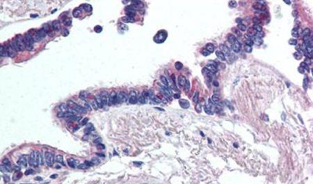 WNT2 Antibody (PA5-34320) in Immunohistochemistry (Paraffin)