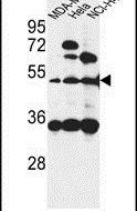 ISLR Antibody (PA5-24804) in Western Blot