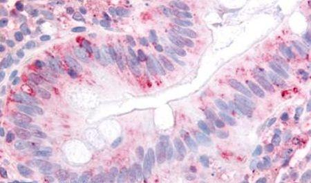 ITGA2 Antibody (PA5-32879) in Immunohistochemistry (Paraffin)