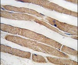 ITGB1BP3 Antibody (PA5-12391)