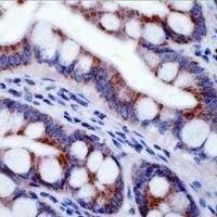 ITGB5 Antibody (PA1-37932)