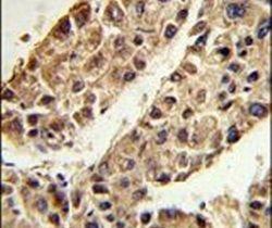 ITIH2 Antibody (PA5-13670) in Immunohistochemistry