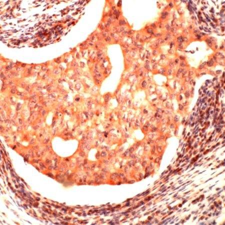 JAB1 Antibody (PA5-32456) in Immunohistochemistry