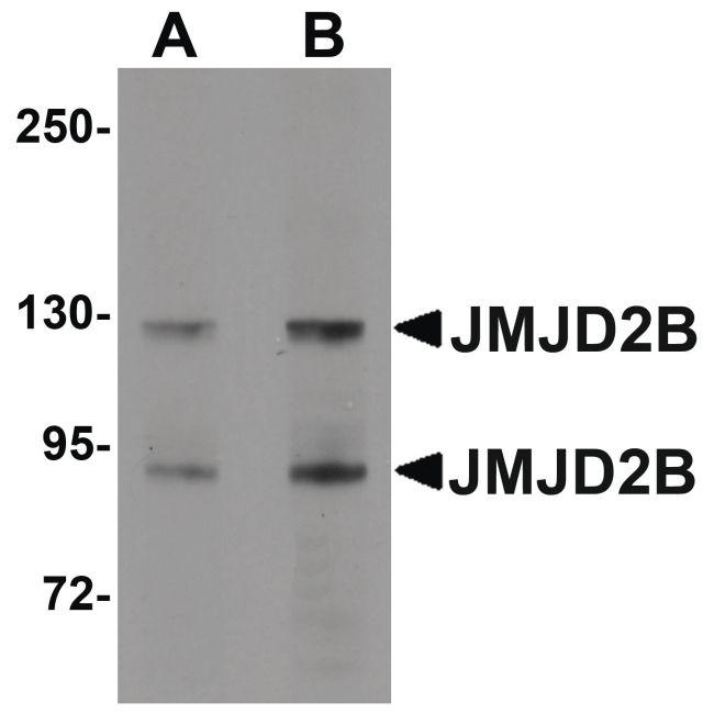 JMJD2B Antibody (PA5-20815) in Western Blot