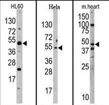 JMJD6 Antibody (PA5-11173) in Western Blot