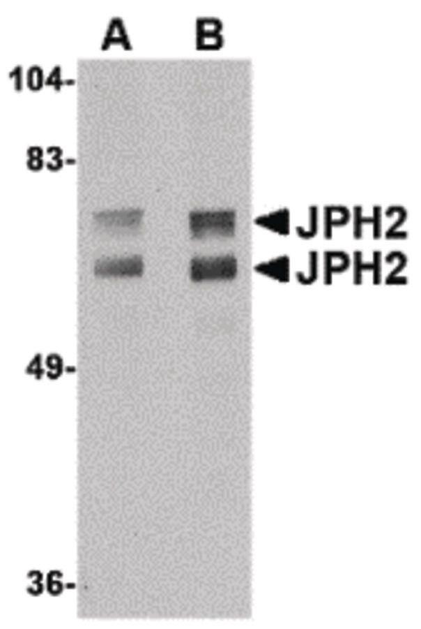 JPH2 Antibody (PA5-20642) in Western Blot