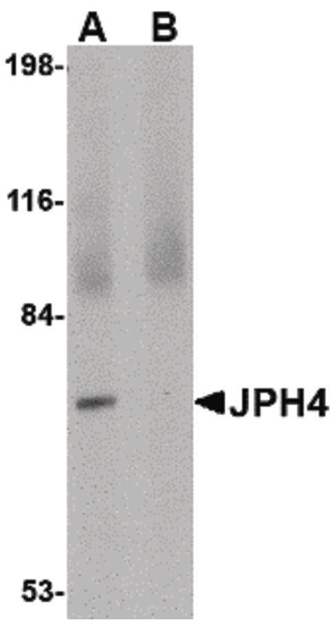 JPH4 Antibody (PA5-20645) in Western Blot