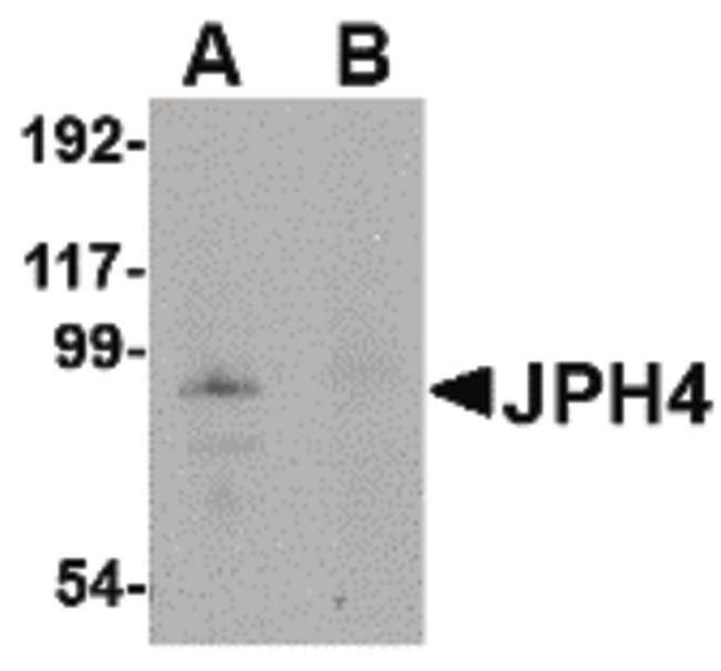 JPH4 Antibody (PA5-20646) in Western Blot