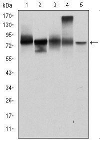 gamma Catenin Antibody (MA5-15905) in Western Blot