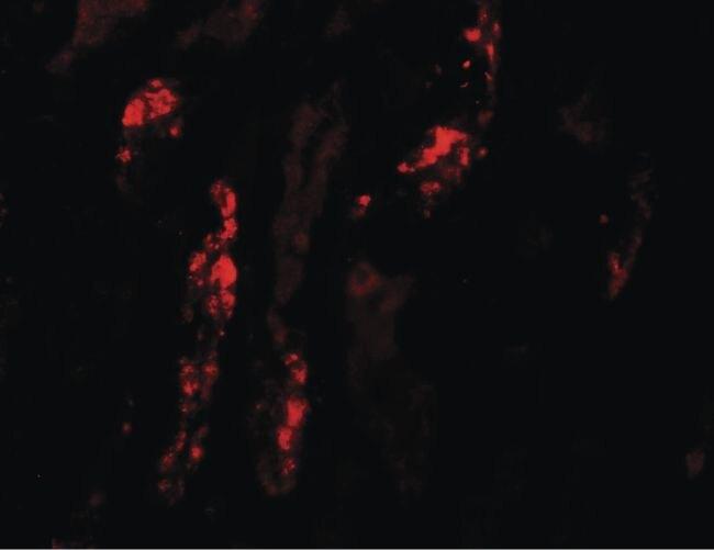 KANK1 Antibody (PA5-34533)