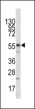 TIP60 Antibody (PA5-11216) in Western Blot